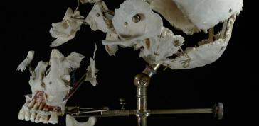 Ryan Matthew Cohn; Exploded/Beauchene Human Skull, 2012–14: Bone, antique brass;  Photo: Sergio Royzen