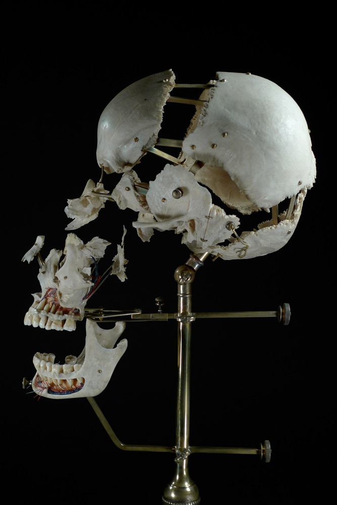 Ryan Matthew Cohn; Exploded/Beauchene Human Skull, 2012–14: Bone, antique brass;  Photo: Sergio Royzen